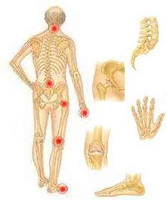képek az ízületi fájdalmakról