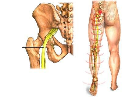 a galangeális ízületek deformáló artrózisa)