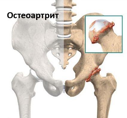 csípőfájás diszlokáció)