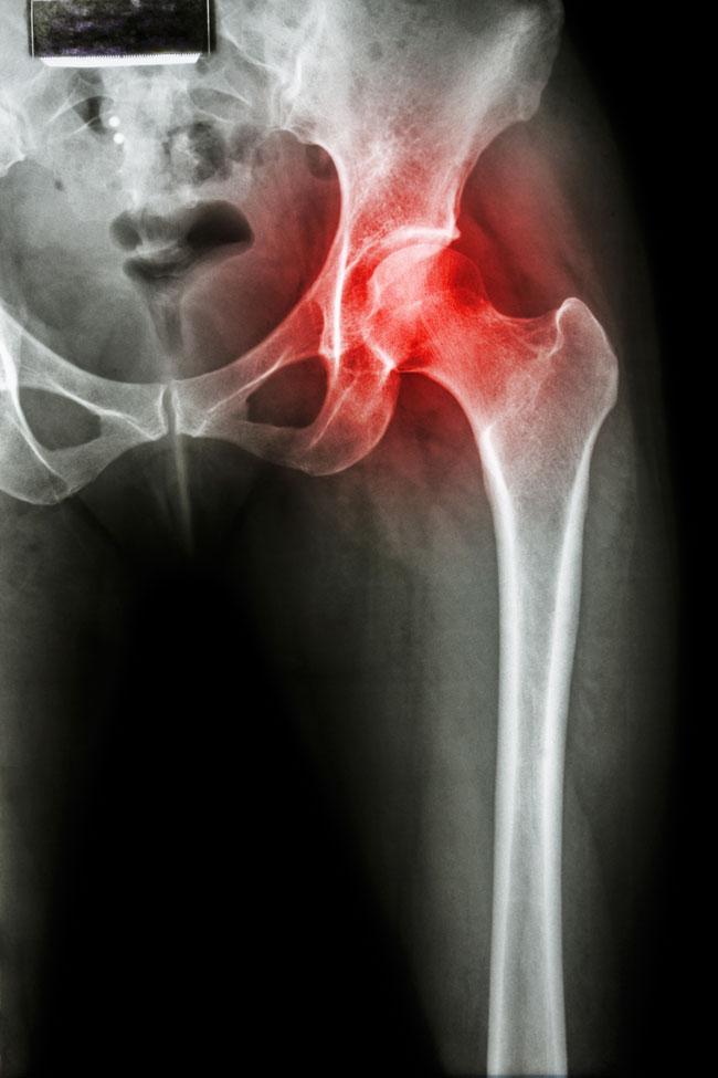 csípő coxarthrosis és kezelése a csípőízület első fokú artrózisának kezelése