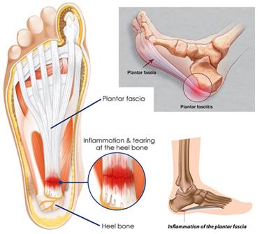 a váll neuralgia hatékony kezelése gyógyszerek csontritkulás és ízületek kezelésére