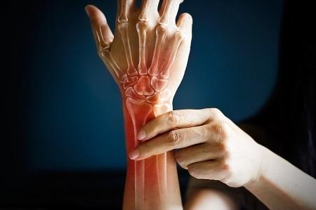 csípő artroplasztika után