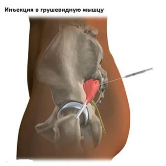 csípőízületi kezelés fizioterápiával