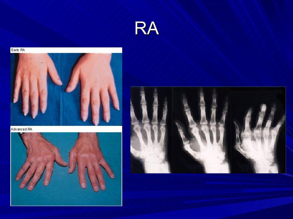 akut rheumatoid arthritis esettanulmánya astra közös előkészítés a vásárláshoz