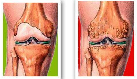 kezdődik a kézkezelés artrózisa szakaszos ízületi fájdalom az egész testben