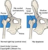 a csípőízület 1. fokozatú kezelési tünetei)