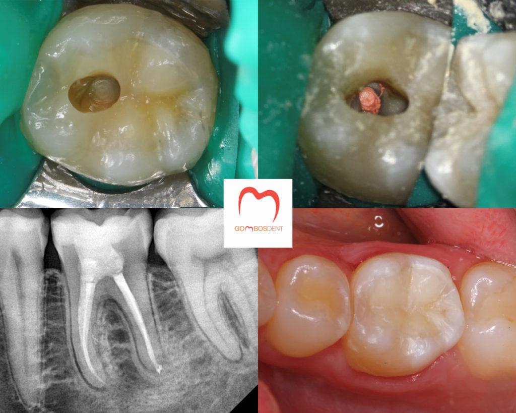 ízületi fájdalom a fogkezelés után kenőcs a térdízület duzzanatának enyhítésére
