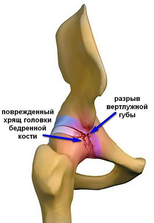 a csípőízület első fokú artrózisának kezelése)