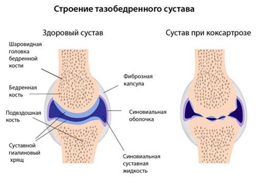 a csípőízület inak gyulladásának kezelése