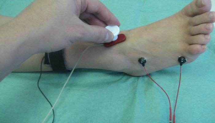 a könyökízület bursitis-kezelése diprospan-nal