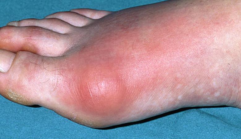 a kézízületek ízületi gyulladása a fájdalom enyhítésére