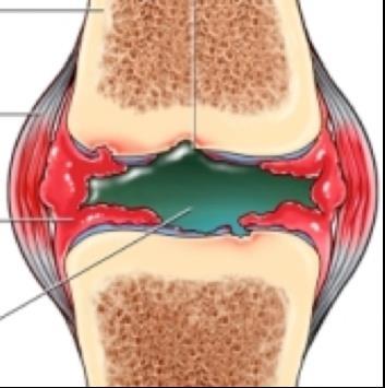 a láb kicsi ízületeinek ízületi ízületi gyulladása)