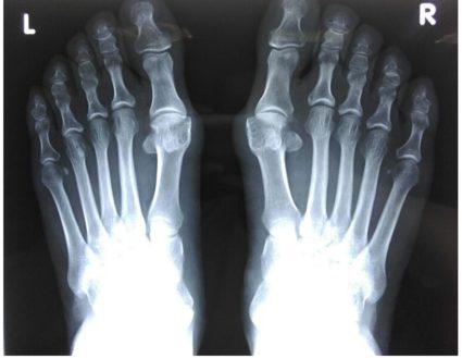 a nagy lábujj ízületének kezelése dimexiddal)