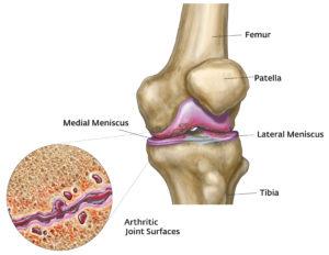 a térd artrózisának kezdeti stádiuma)