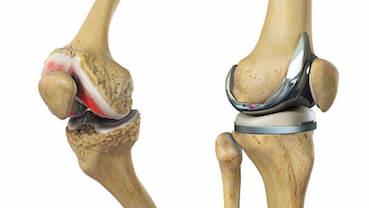 a térd gyógyult artrózisa ízületi anyagcsere helyreállítása