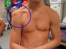 a vállízület ligamentumainak sérülése)