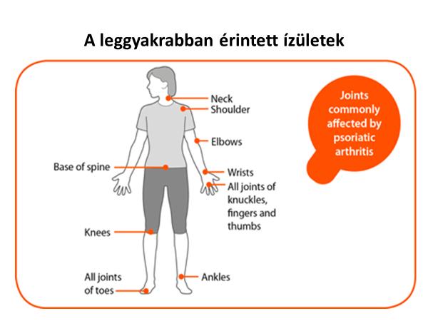 ízületi sérülés elsősegély sárgarépa ízületi kezelés