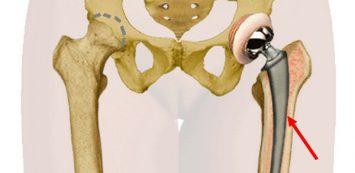 a térdízület kezelésének spontán osteonecrosisa