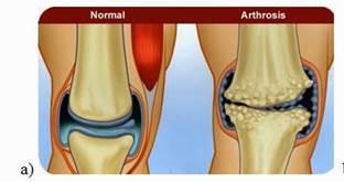az alsó végtagok kezelésének 2. fokú artrózisa