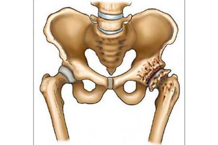 csípő coxarthrosis artrózisa, mint kezelése)