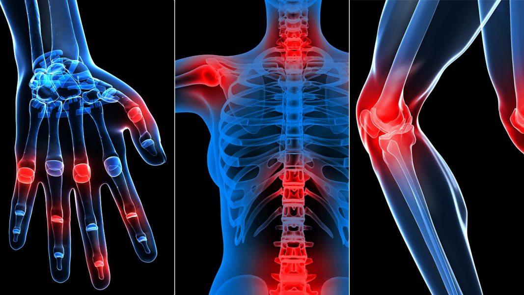 a csontok vagy ízületek az egész testen fájnak)