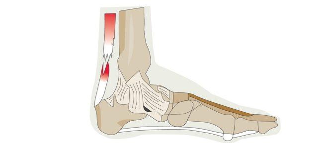 Az Achilles-ín fájdalom okai és kezelési lehetőségei