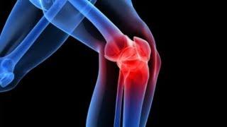 artrózis gyógyítása a térd artrózisának kezdeti megnyilvánulásai