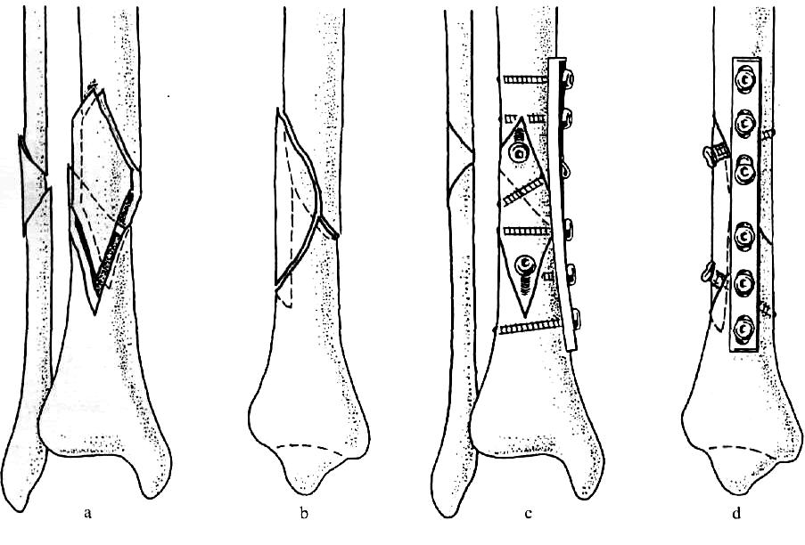 az alsó láb hibás ízületei töréskezelés után)