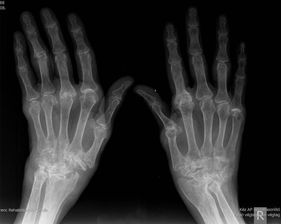 az artrózis kezelésében elért haladás