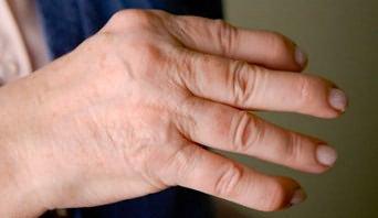 az ujjak ízületeinek artrózisa kenőcskezelés)