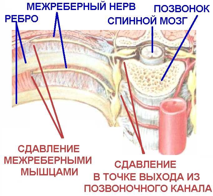 az ívek osteochondroze)