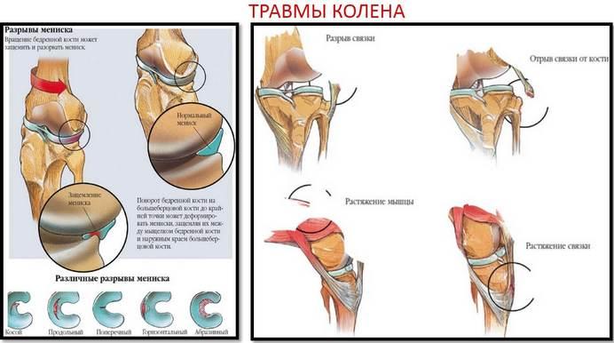 az ízületek artrózisának modern kezelése csípőfájdalom születéskor
