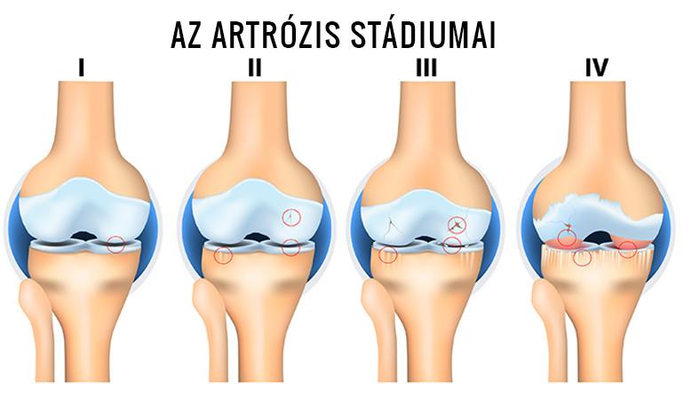 az ízületek artrózisának radiológiai stádiumai