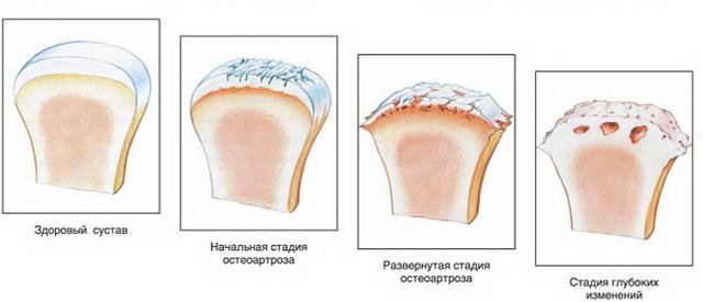 az ízületek deformáló artrózisa 2-3 fokkal fájdalom a tenyér ízületeiben