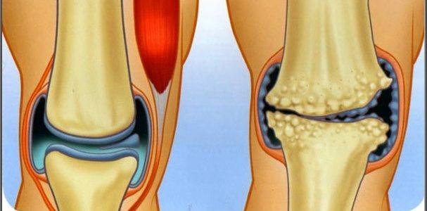artrózis kezelési módszerei