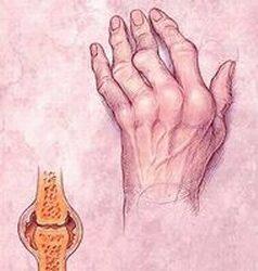 hattyúkarok rheumatoid arthritis kezelésére)