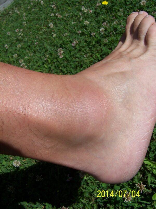 bokaízület paraartikuláris lágy szöveteinek ödémája