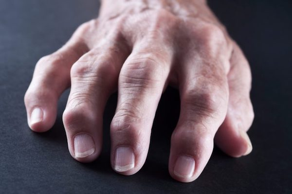 a lábujj ízületi ízületi gyulladása)