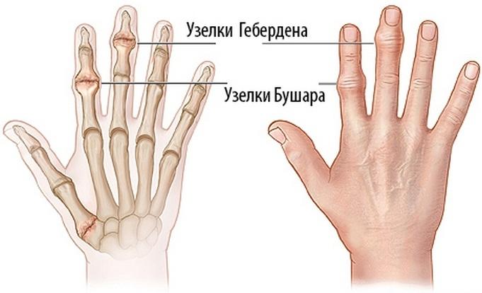 a kéz könyökízületei fájnak)