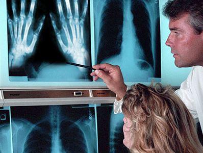fűszerek artrózis kezelésére
