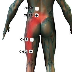 artrózis kezelése időskorúaknál