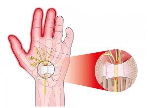 ujjízület fájdalma véraláfutás után