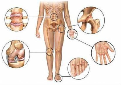 térdízületek fájdalma artrózissal