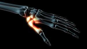 a kéz arthrosisának diagnosztizálása és kezelése