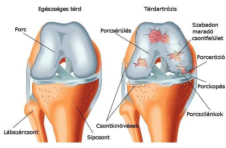 diffúz ízületi fájdalom halak ízületi betegségek esetén