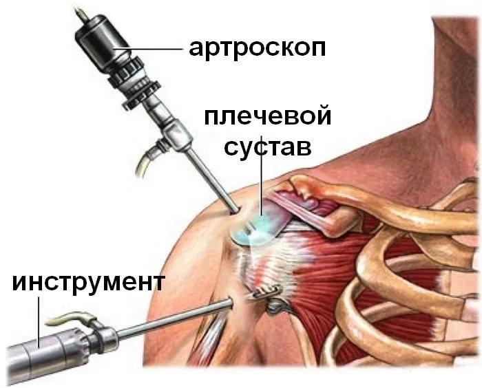 a térd törésének kezelése a csípőízület ízületi gyulladása 2 fok