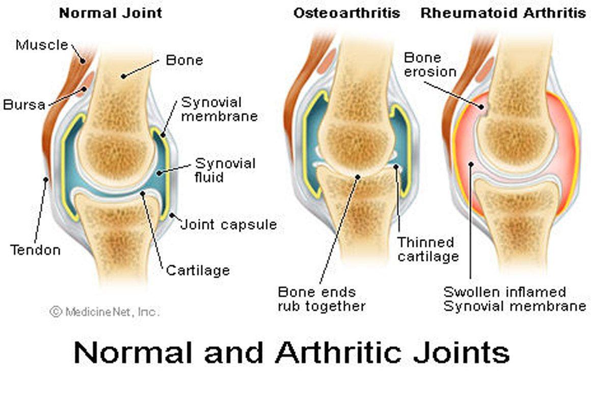 boka osteoarthritis kezelésére szolgáló gyakorlatok