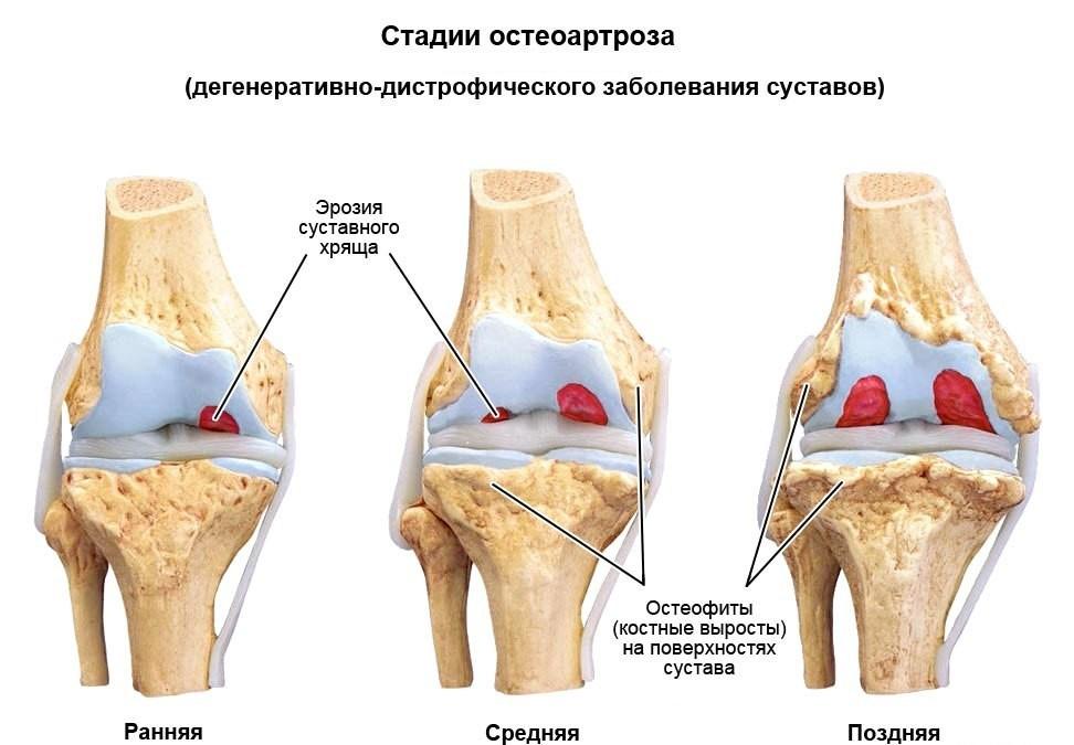 fizioterápiás kezelés a térd artrózisában