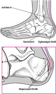a nagy lábujjak ízületei fájnak, mit kell tenni