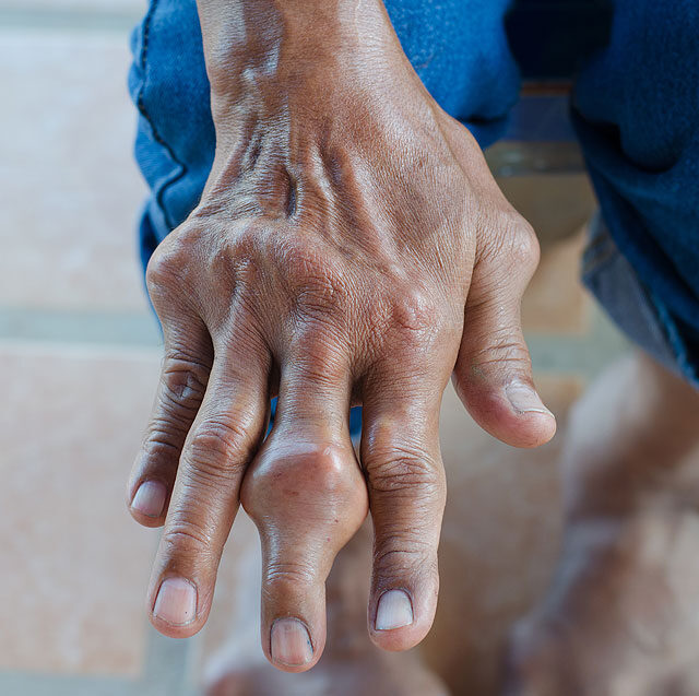 ízület a középső lábujj fáj)